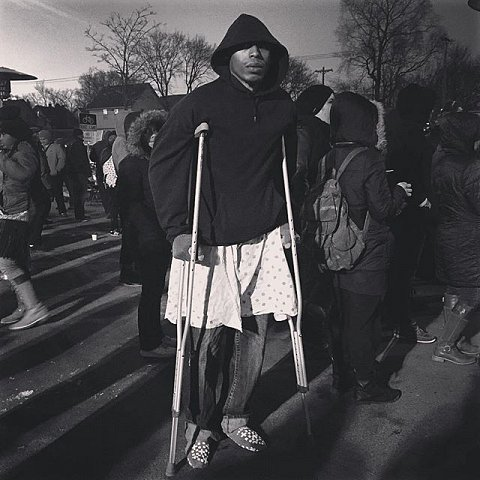 "Cameron Clark, 24, was shot in the leg and foot last night by masked white men while peacefully protesting the fatal shooting of Jamar Clark, who was his cousin. Released from the hospital today, he's here tonight for his cousin. ""Even though I'm wounded I'm going to come out and fight. I'm still going to support my people because not just black lives matter, all lives matter,"" says Clark. #blacklivesmatter #releasethetapes #minneapolis #minnesota #protest #usa #jamarclark"